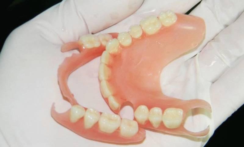 Пластиночный зубной протез