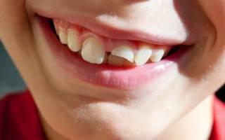 Ребенок со сломанным зубом