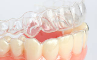 Ретенционная капа на зубы
