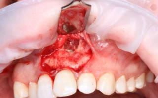 Операция по удалению верхушки корня зуба