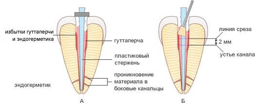 Thermafil