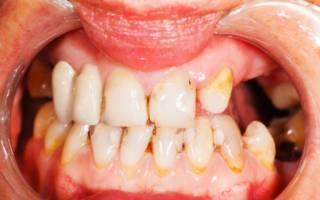 Разрушающиеся зубы