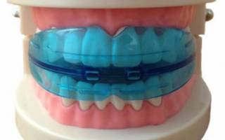 Что такое ретейнер как ставят пластину после брекетов и сколько времени ее нужно носить на зубах