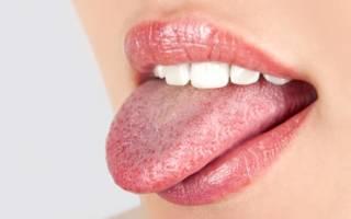 Причины возникновения и методы лечения типуна на языке