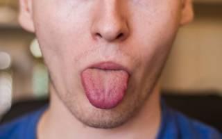 У мужчины онемел язык