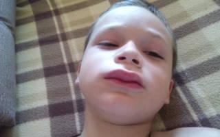 У ребенка распухла губа
