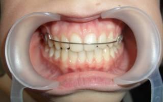 Процесс установки ретейнеров на зубы