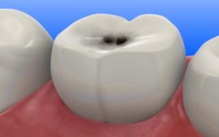 Черная точка на жевательном зубе