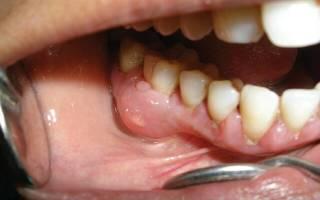 Симптомы и лечение воспаления надкостницы зуба