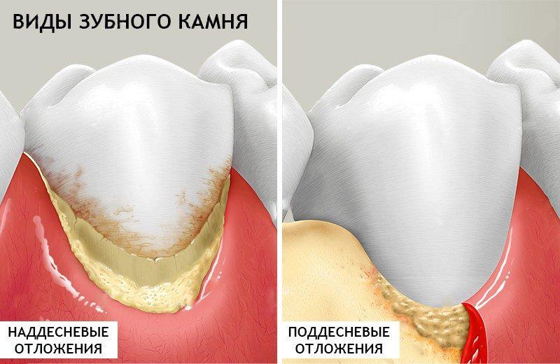 Фото видов зубного камня