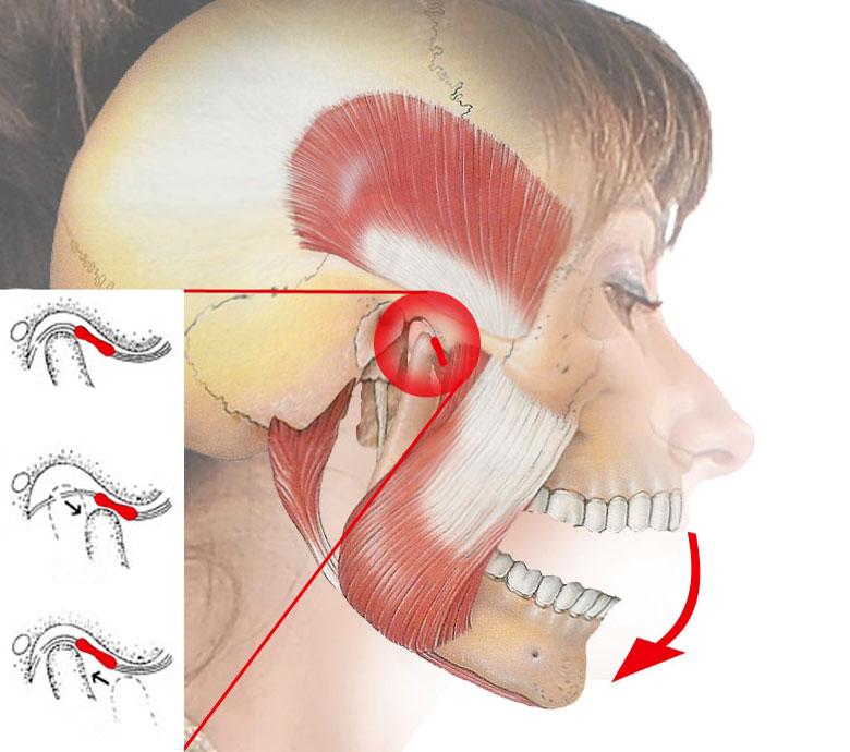 Изображение - Вылетел сустав челюсти artroz-chelyustno-licevogo-sustava
