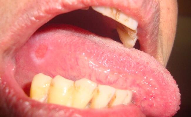 Воспаление сбоку на языке