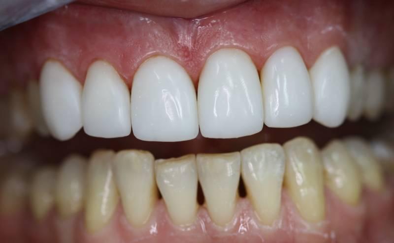 Косметическая коррекция передних зубов