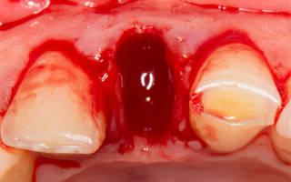 Кровь после удаления зуба