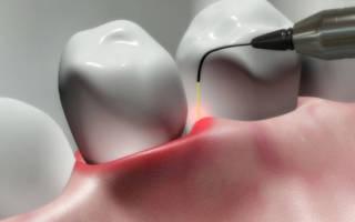 Лазерное лечение периостита