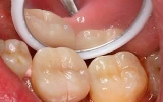 Осмотр зуба