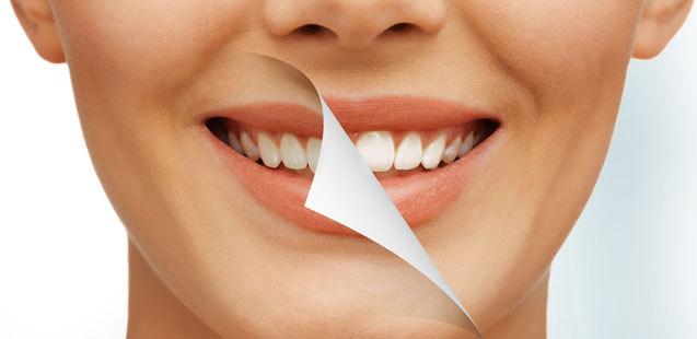 Отбеливание зубов плюсы и минусы (лазерное, ультразвуковое и другие)