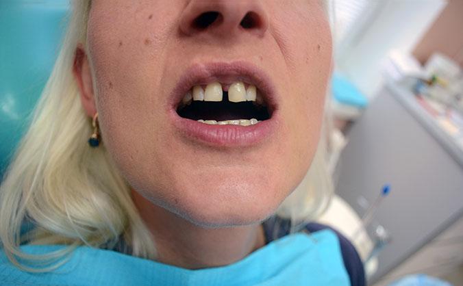 Симметричная щель между зубами