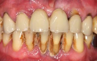 Зубной камень на нижних зубах