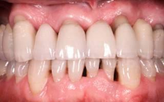 Оголившиеся зубы