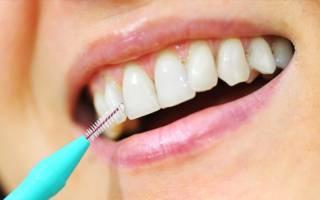 Как выбирать и правильно использовать ершики для чистки зубов?