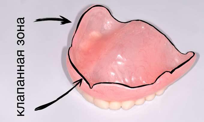 Конструкция протеза на присосках