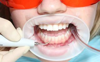 Начальный этап чистки зубов