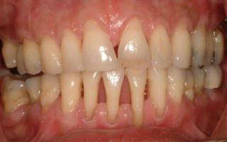 Десна отходят от зубов