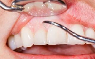 Почему дёсны отходят от зубов и что с этим делать?
