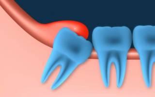 Удаление капюшона зуба мудрости – для чего оно необходимо и как выполняется?