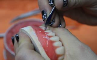 Изготовление акрилового протеза