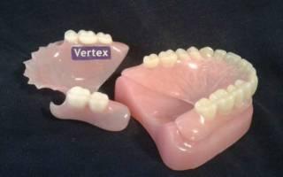 Акриловый протез Вертекс