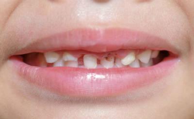 Глубокий кариес на молочных зубах