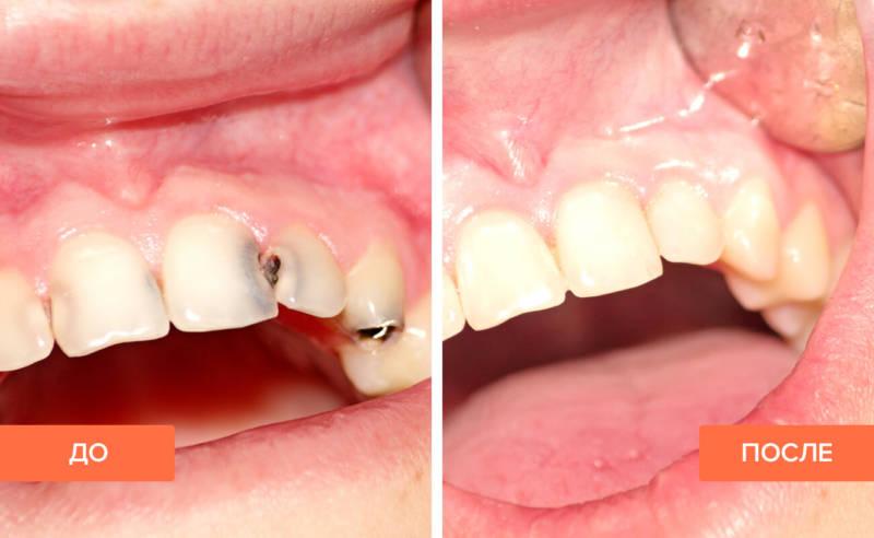 Лечение глубокого кариеса на передних зубах
