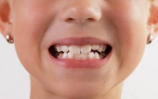 Ребенок показывает зубы
