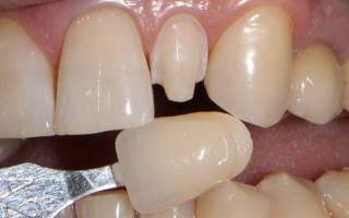 Обточка зуба под винир
