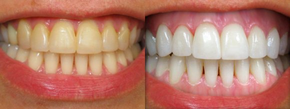 Чистка зубов Аир флоу - до и после