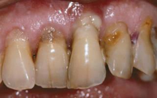 Оголение зубов
