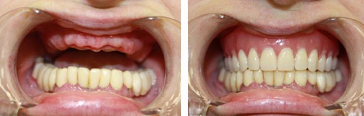 Установка полного зубного протеза