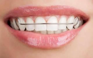 Скобы для зубов: принцип действия, процесс установки и отличия от брекетов