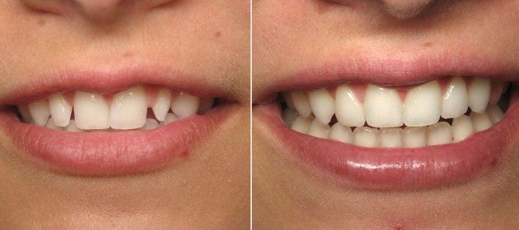 Виниры - фото до и после