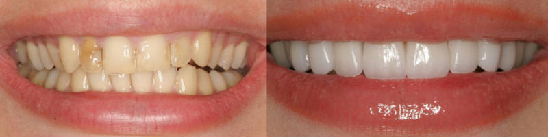До и после установки виниров - фото