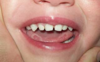Язвочки на языке у ребенка