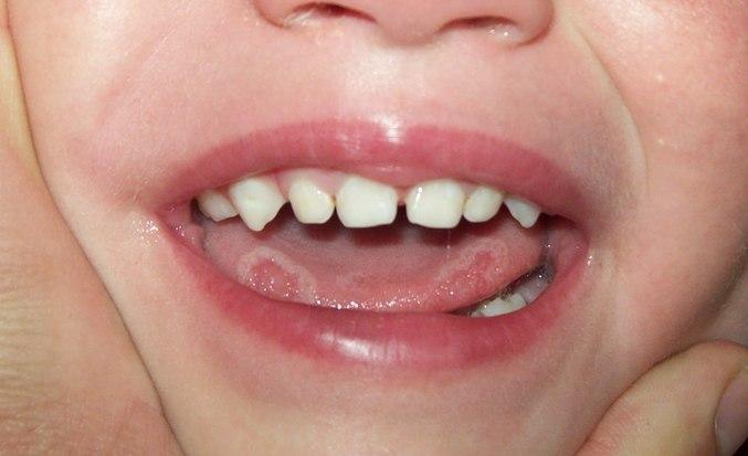 Язвы на языке сбоку причины чем лечить
