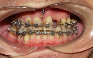 Брекеты при частичном отсутствии зубов