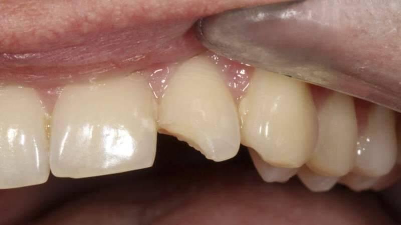 Раскрошившийся зуб