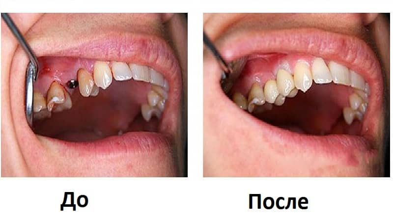 Имплантация разрушенного зуба