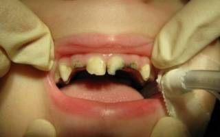 Раскрошенные зубы у ребенка