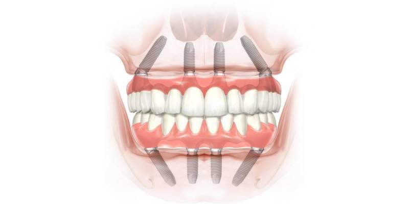 Базальная имплантация по методу All-On-4