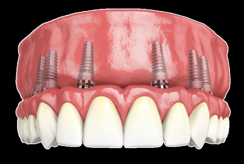 Базальная имплантация по методу All-On-6